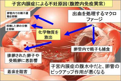 子宮内膜症と不妊症・全体像