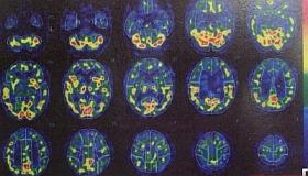 脳内の変化1
