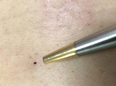 鍼治療による出血